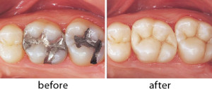 Debunking Silver FIllings