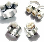 naturesdental dr olga isaeva tooth-rings